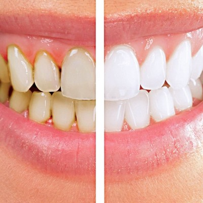 efect albire dinti
